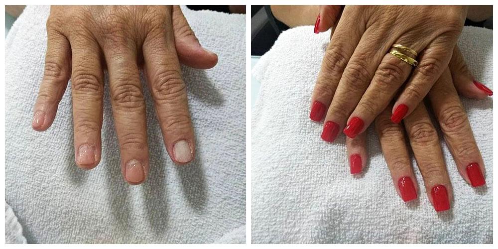 Antes e depois das unhas com fibra.